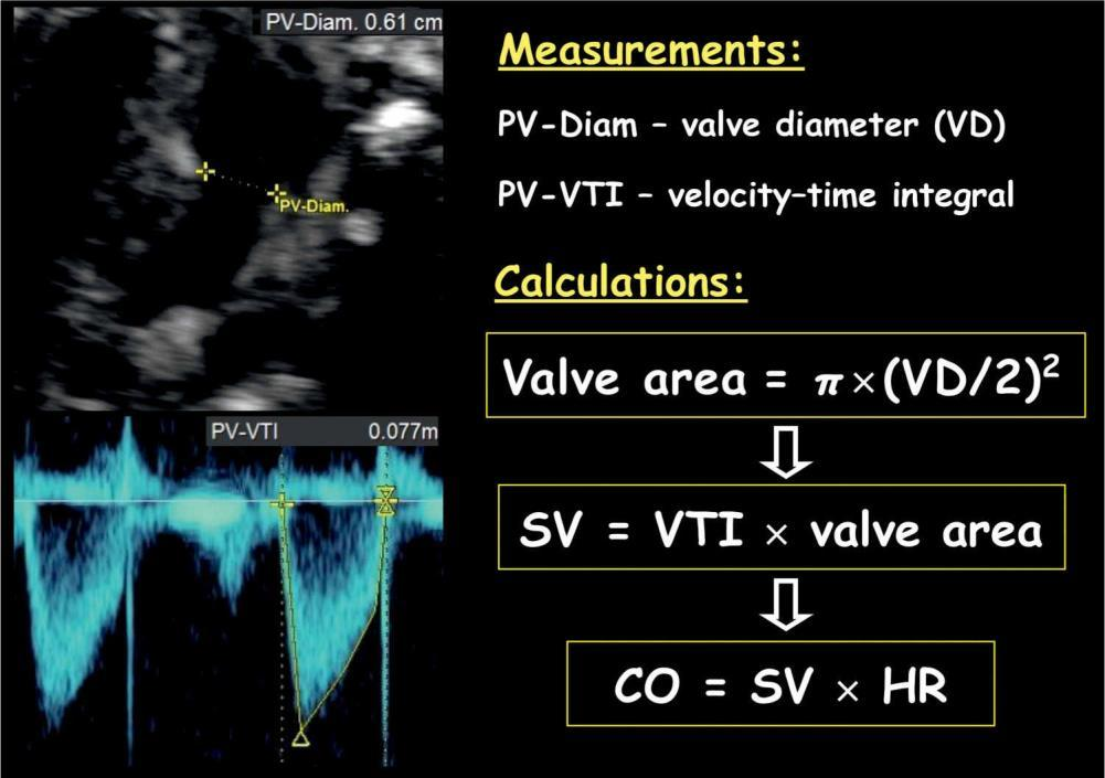 Pulmonary Valve Velocity Time Integral From the PLAX view - angle to pulmonary artery view, Pulse Doppler VTI, and Annular diameter measurement.